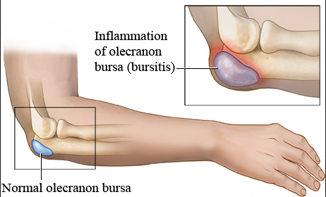 bursitis compare